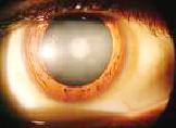 Las cataratas son opacidades dentro del ojo